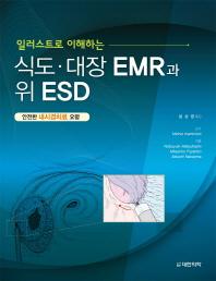 일러스트로 이해하는 식도 대장 EMR과 위 ESD