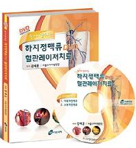 손에 잡히는 하지정맥류 DVD 혈관레이저치료