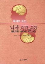 증례로 보는 뇌파 ATLAS