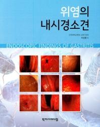 위염의 내시경 소견