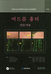 여드름 흉터 진단 치료