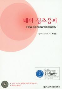 태아 심초음파 세트