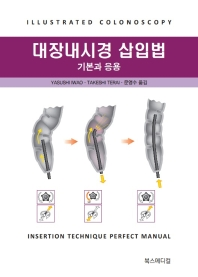 대장내시경 삽입법 기본과 응용