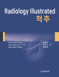 Radiology Illustrated: 척추