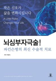 뇌심부자극술