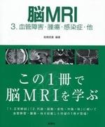 腦MRI 3
