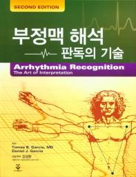 부정맥 해석 판독의 기술