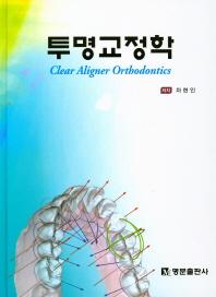 투명교정학