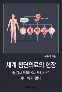 세계 첨단의료의 현장 : 줄기세포(iPS세포) 치료 어디까지 왔나