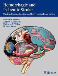Hemorrhagic and Ischemic Stroke