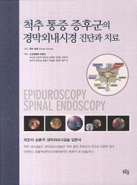 척추 통증 증후군의 경막외내시경 진단과 치료