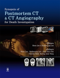 Synopsis of Postmortem CT and CT Angiography for Death Investigation