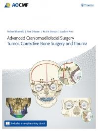Advanced Craniomaxillofacial Surgery: Tumor, Corrective Bone Surgery, and Trauma