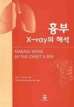 흉부 X-RAY의 해석