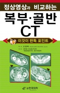 정상영상과 비교하는 복부 골반 CT
