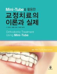 Mini-Tube를 활용한 교정치료의 이론과 실제