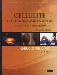 셀룰라이트 진단과 치료