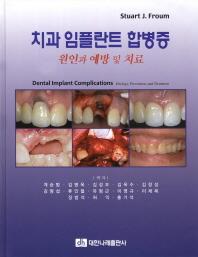 치과 임플란트 합병증 원인과 예방 및 치료