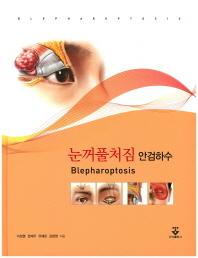 눈꺼플처짐 안검하수