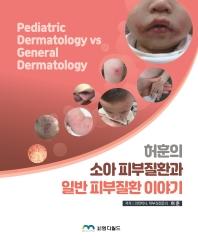 소아 피부질환과 일반 피부질환 이야기
