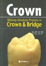 MAKING ABSOLUTE PROCESS IN CROWN AND BRIDGE