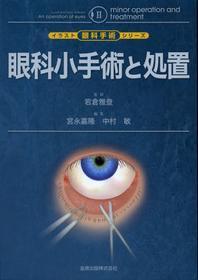 眼科小手術と處置