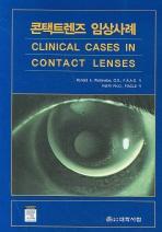 콘택트렌즈 임상사례