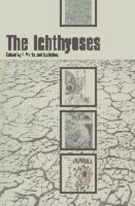 The Ichthyoses