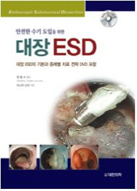 안전한 수기 도입을 위한 대장 ESD