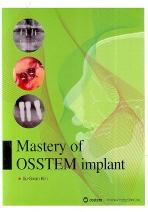 오스템 임플란트 MASTERY OF OSSTEM IMPLANT