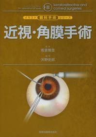 近視.角膜手術