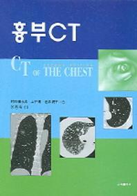 흉부 CT