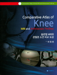 슬관절 MRI와 관절경 소견 비교 도감