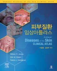 피부질환 임상아틀라스