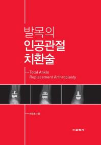 발목의 인공관절 치환술