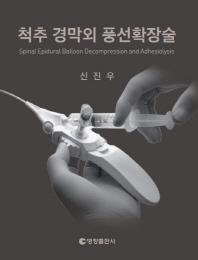 척추 경막외 풍선확장술