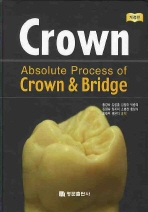 ABSOLUTE PROCESS OF CROWN AND BRIDGE (개정판)
