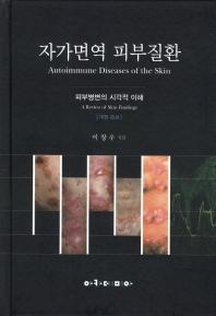 자가면역 피부질환