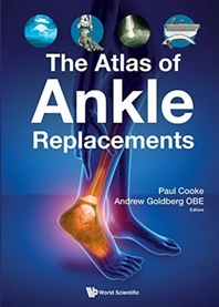 The Atlas of Ankle Replacements