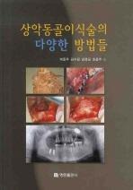 상악동골이식술의 다양한 방법들