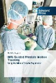 MRI-Guided Prostate Motion Tracking