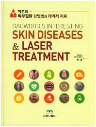 허훈의 피부질환 감별법과 레이저 치료
