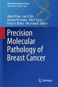 Precision Molecular Pathology of Breast Cancer