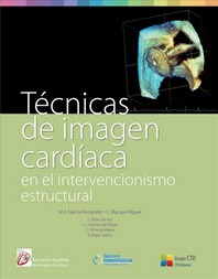 Tecnicas de Imagen Cardiaca