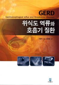 위식도 역류와 호흡기 질환
