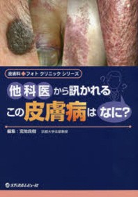 他科醫から訊かれるこの皮膚病はなに?